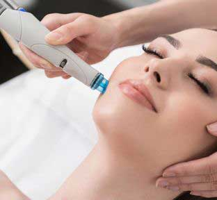 Laser hair removal whole face